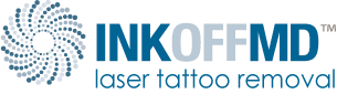 Inkoff MD Tattoo Removal