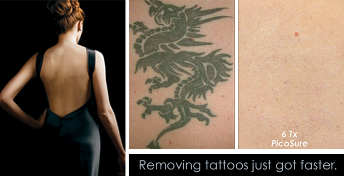 TattooRemoval- Only 6 Treatments!