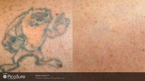 tattoo-removal-2